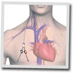 fistulas Cirugía cardiovascular en Centro Cardiovascular Málaga